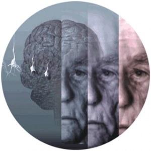 174928_497199654_cerebro-omega-6-efectos-cerebro_H213511_L