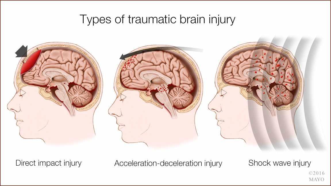 traumatic brain injury tbi