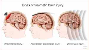 a-medical-illustration-of-types-of-traumatic-brain-injury-16X9