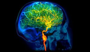 cerebrovascular-disease_342x198_C0071980