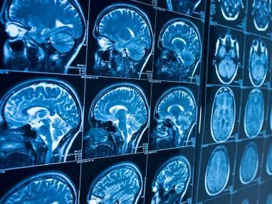 082616_brain-release_600_ts_0