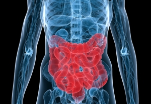 5-year-survival-rate-bowel-cancer-usa