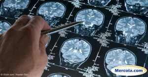 brain-scan-logo-fb